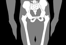 腰椎や骨盤の歪みは優柔不断や怠け癖、億劫などの行動力の低下に繋がります。